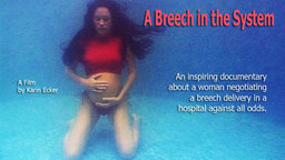 A Breech in The System - Natural Breech Child-Birth